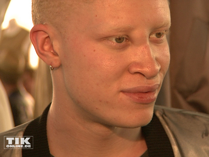 Das international renommierten Albino-Models Shaun Ross