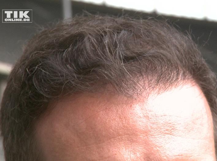 Christoph Metzelder und seine Haare