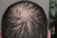 Haarausfall kann jeden treffen – auch Prominenten hilft eine Haarpigmentierung