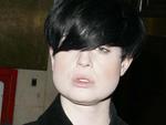 Gebranntes Kind: Kelly Osbourne erleidet Deo-Unfall