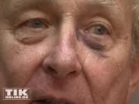 Prinz Eduard von Anhalt hat ein blaues Auge